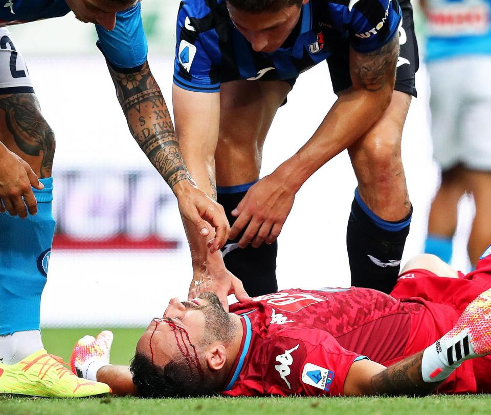 ¿Todo bien, Ospina? Napoli develó parte médico tras golpe en la cabeza 2